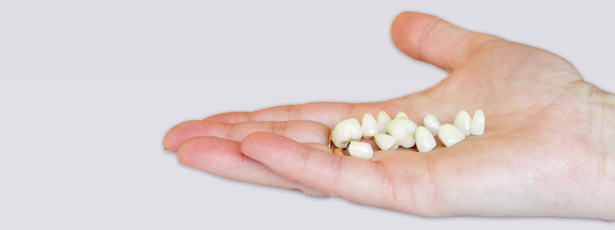 Prothetische tandheelkunde - Mondzorg Zichem