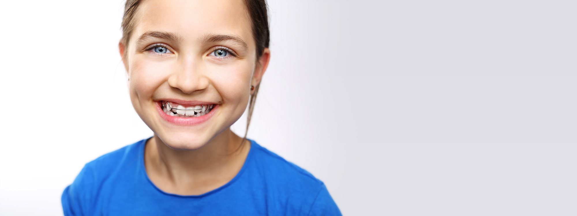 Orthodontie - Mondzorg Zichem